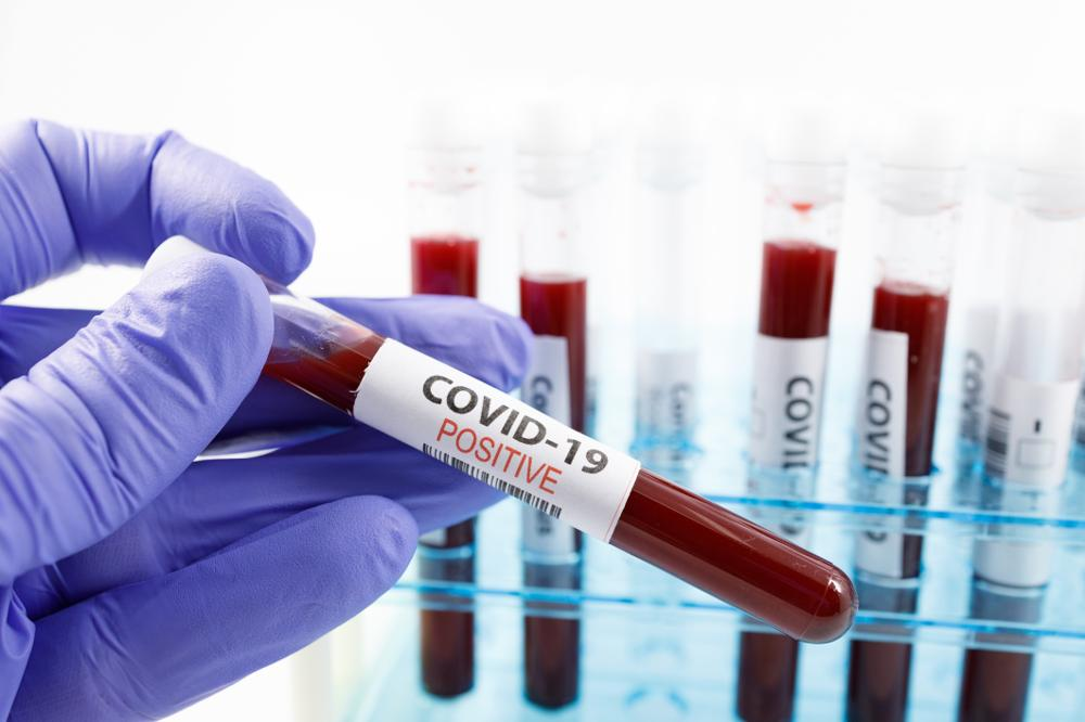 Lek na koronawirusa. Tym razem znamy nazwę